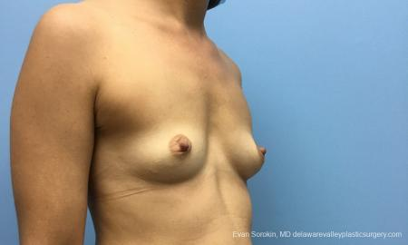Philadelphia Breast Augmentation 12519 - Before Image 2