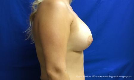 Philadelphia Breast Augmentation 12517 -  After Image 4