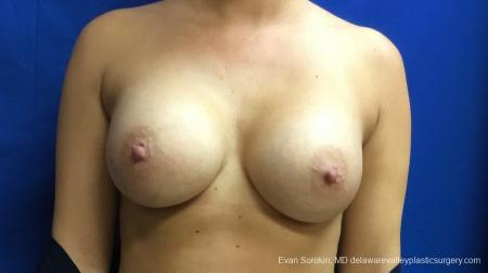 Philadelphia Breast Augmentation 13173 -  After Image 1