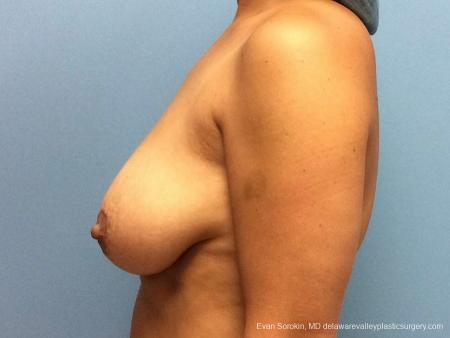 Philadelphia Breast Lift and Augmentation 13070 - Before and After Image 5