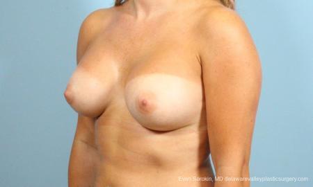Philadelphia Breast Augmentation 8650 -  After Image 3