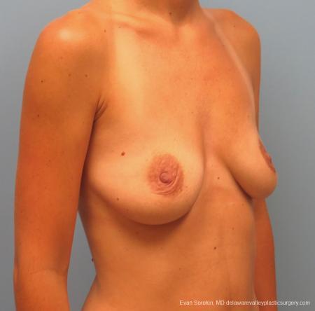 Philadelphia Breast Augmentation 13067 - Before Image 2