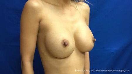 Philadelphia Breast Augmentation 13178 -  After Image 2