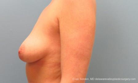Philadelphia Breast Lift and Augmentation 10116 - Before and After Image 5