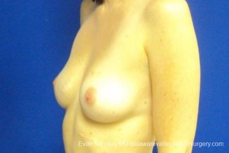 Philadelphia Breast Augmentation 8776 - Before Image 3