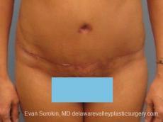 Philadelphia Abdominoplasty 8672 - After Image