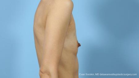 Philadelphia Breast Augmentation 9291 - Before Image 3