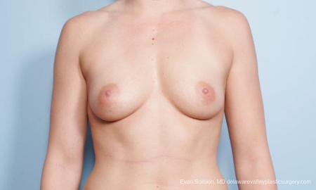 Philadelphia Breast Augmentation 9296 - Before Image 1