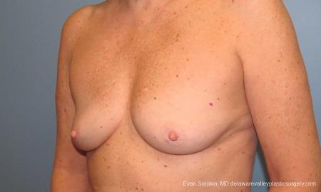 Philadelphia Breast Augmentation 9600 - Before Image 4