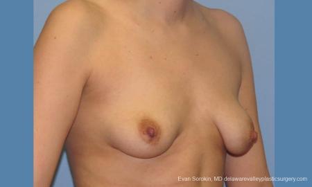 Philadelphia Breast Lift and Augmentation 10115 - Before Image 2