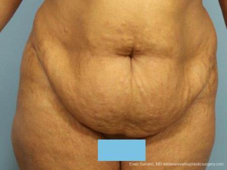 Philadelphia Abdominoplasty 9462 - Before Image 1