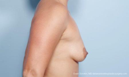 Philadelphia Breast Augmentation 9297 - Before Image 3