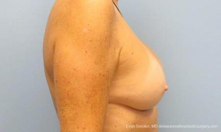 Philadelphia Breast Augmentation 9600 -  After Image 3
