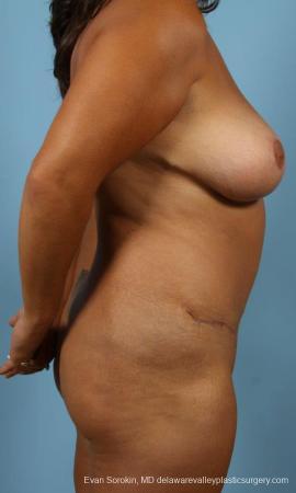 Philadelphia Mommy Makeover 9469 -  After Image 3