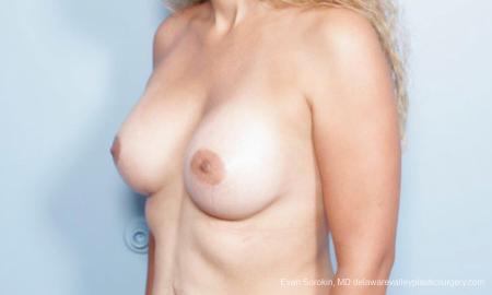 Philadelphia Breast Augmentation 9347 -  After Image 4