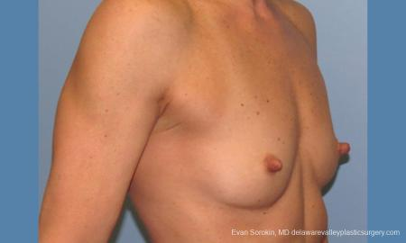 Philadelphia Breast Augmentation 9744 - Before Image 2