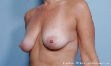 Philadelphia Breast Lift and Augmentation 9375 - Before Image 4