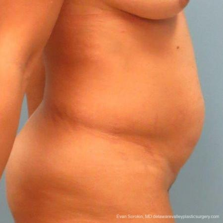Philadelphia Abdominoplasty 9478 - Before and After Image 5