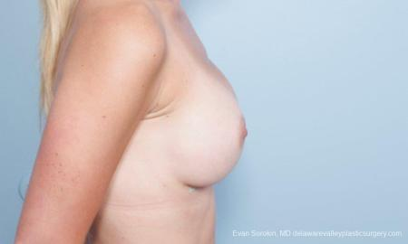 Philadelphia Breast Augmentation 8651 -  After Image 4