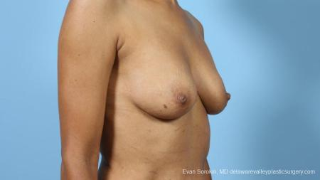 Philadelphia Breast Augmentation 9288 - Before Image 2
