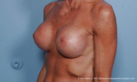 Philadelphia Breast Augmentation 8656 -  After Image 3