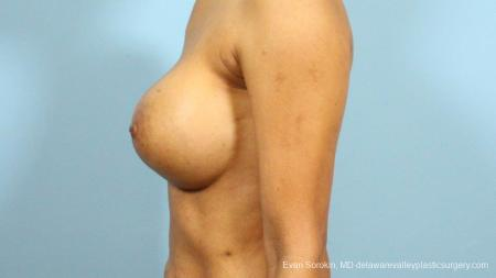 Philadelphia Breast Augmentation 9288 -  After Image 5