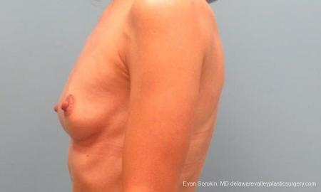 Philadelphia Breast Augmentation 9368 - Before and After Image 5