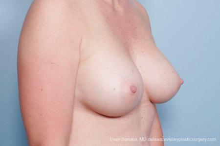 Philadelphia Breast Augmentation 8658 -  After Image 2