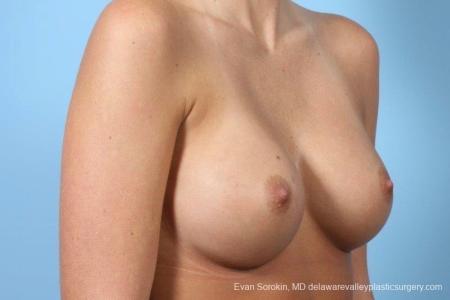 Philadelphia Breast Augmentation 8772 -  After Image 2