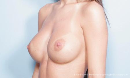Philadelphia Breast Augmentation 9445 -  After Image 2