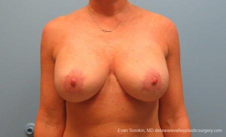 Philadelphia Breast Lift and Augmentation 8690 -  After Image 1