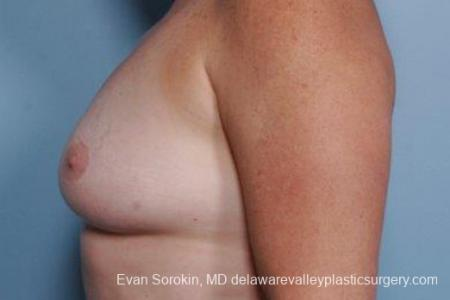 Philadelphia Breast Augmentation 9316 - Before and After Image 5