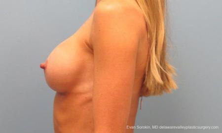 Philadelphia Breast Augmentation 9397 -  After Image 5