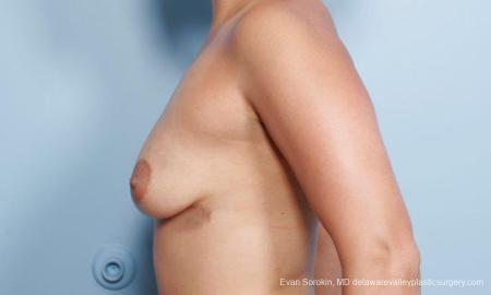 Philadelphia Breast Augmentation 9297 - Before and After Image 5