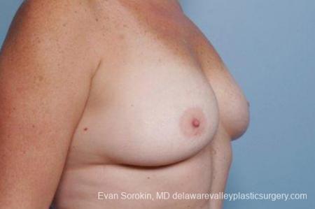 Philadelphia Breast Augmentation 9316 - Before Image 2
