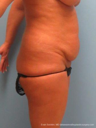 Philadelphia Abdominoplasty 9463 - Before Image 3