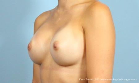 Philadelphia Breast Augmentation 8641 -  After Image 4