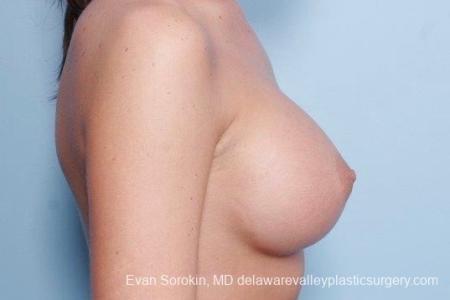 Philadelphia Breast Augmentation 8792 -  After Image 4