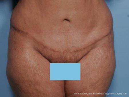 Philadelphia Abdominoplasty 9462 -  After Image 1