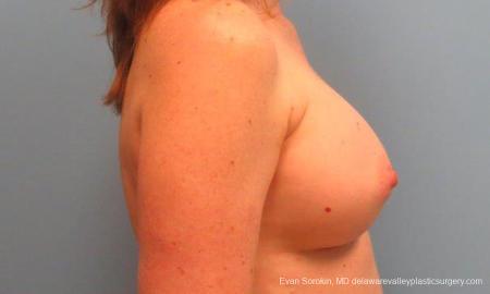 Philadelphia Breast Augmentation 9180 -  After Image 3