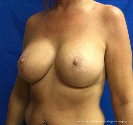 Philadelphia Breast Lift and Augmentation 13068 -  After Image 4