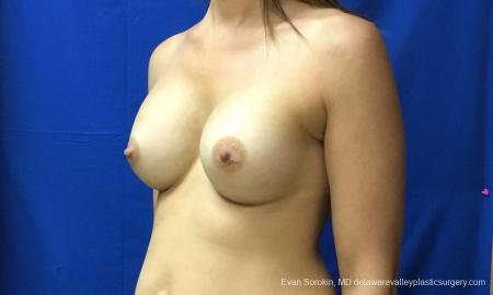 Philadelphia Breast Augmentation 12519 -  After Image 3