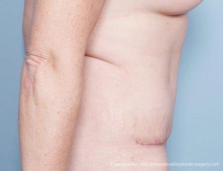 Philadelphia Abdominoplasty 9315 -  After Image 5