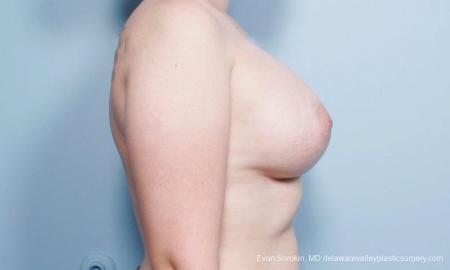 Philadelphia Breast Augmentation 9419 -  After Image 3