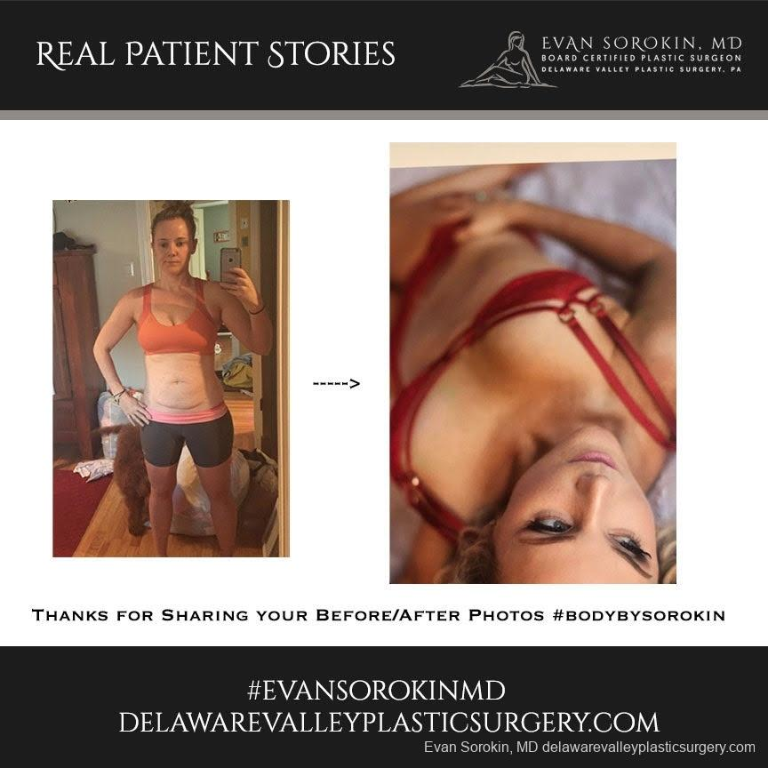 Real Patient Stories: Patient 14 - Before and After 1