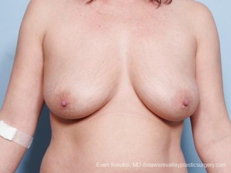 Philadelphia Breast Lift and Augmentation 8671 - Before Image