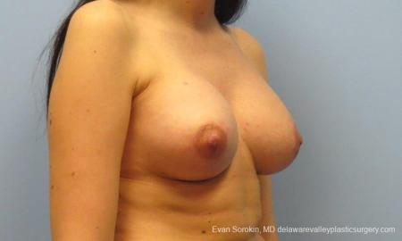 Philadelphia Breast Lift and Augmentation 10115 -  After Image 2