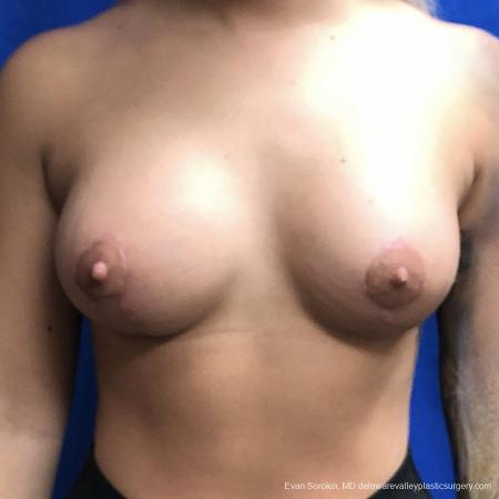 Breast Lift And Augmentation: Patient 43 - After Image 1