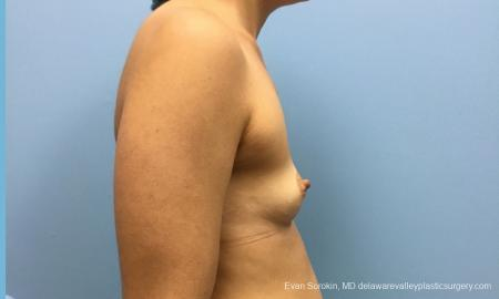 Philadelphia Breast Augmentation 12519 - Before Image 4
