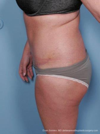 Philadelphia Abdominoplasty 9463 -  After Image 5